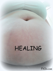 Belly Love: The members of Fit2B Studio - a site that specializes in routines for diastasis recti - write words of hope and affirmation on their tummies to show the world that beauty can still be found in brokenness - Fit2b.com