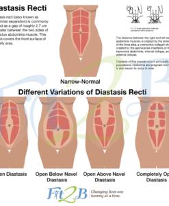 different types of diastasis rectus abdominus – fit2b.com