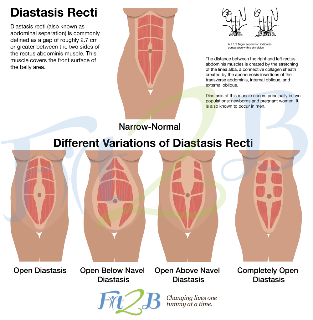 How to check for diastasis recti - Fit2B
