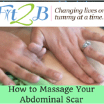 how-to-massage-your-abdominal-scar