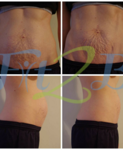 Why does my skin pucker when my diastasis recti starts to close? -fit2b.com
