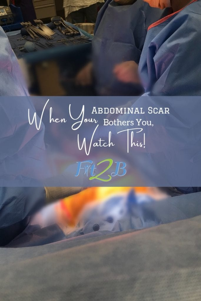 If Your Abdominal Scar Bothers You, Watch This! - Fit2B.com - When you are working to strengthen core muscles after surgery {post csection, appendectomy, hernia surgery, etc.} don't miss out on this home workout video great to add to your rehab exercises safe for diastasis recti. - #postpartum #recovery #healing #momlife #diastasisrecti #diastasis #fitmom #newborn #fitmomlife #fitmom #homefitness #abworkout #homeworkouts_4u #healthylife #healthylifestyle #coreworkouts #diastasisrecti #diastasis #diastasisrecovery #fit2b
