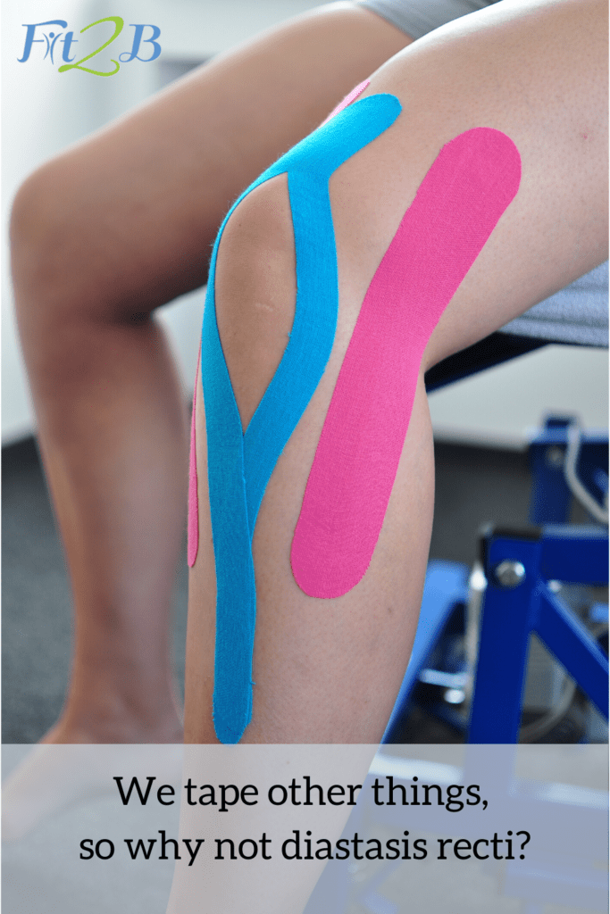 """Taping Diastasis Recti: How to Use Kinesiology Tape on Separated Abs - Fit2B.com - Fit2B knows busy moms are wondering not only """"Is splinting my abs a good idea for my diastasis recti?"""" but also, """"Would kinesiology taping help me during my postpartum workouts?"""" Click through as we discuss this and free videos to help you find what work will work for you at your stage of postpartum recovery. #diastasis #diastasisrecti #fit2b #busymoms #postpartum"""